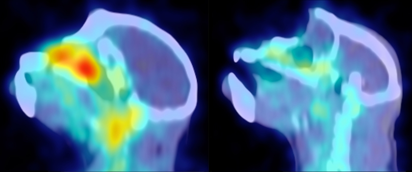 Este macaco infectado com SIV mostra muito menos vírus (vermelho-amarelo) após o tratamento com um anticorpo para α4ß7 (à direita).