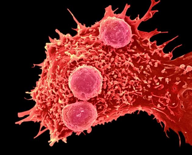 A edição de genes pode melhorar a capacidade das células do sistema imune de atacar o câncer.